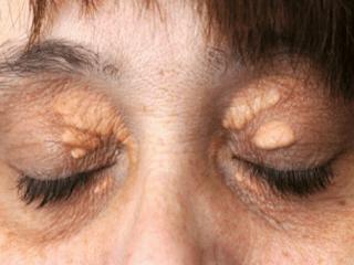 Удаление новообразований на веке глаза