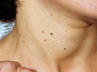 Как удалить папилломы на шее