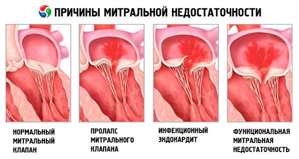 Пролапс митрального клапана: основные симптомы пролапса ...