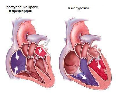 Приобретенные пороки сердца и их классификация, особенности ...