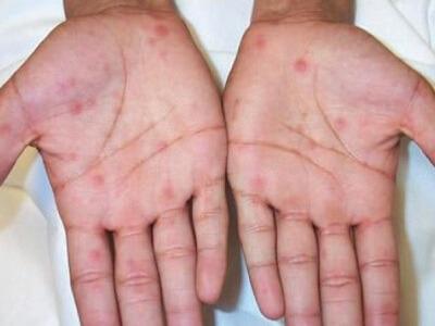 Прыщики на ладонях: причины патологии и способы лечения