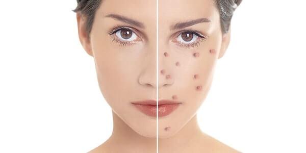 Здоровая кожа и прыщи