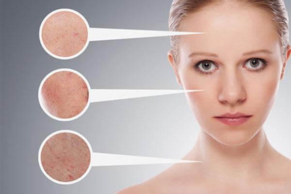 Выдавливание угрей: как выдавить угри самостоятельно и ухаживать за кожей после процедуры
