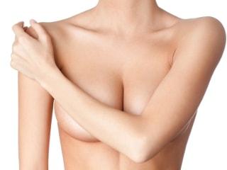 Как избавиться от растяжек на груди и не допустить их появление