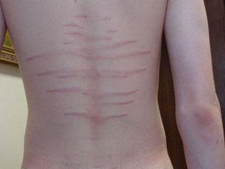 Растяжки у подростков: причины появления и способы их лечения на спине, бедрах и других местах