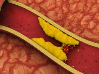 норма холестерина в анализе крови
