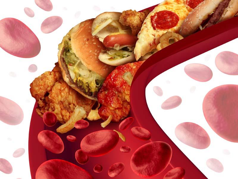Сосуды необходимо чистить от холестерина