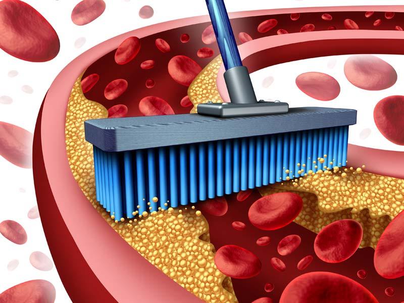 Чистка сосудов от холестерина: медикаментозные и народные методы очищения от холестериновых бляшек