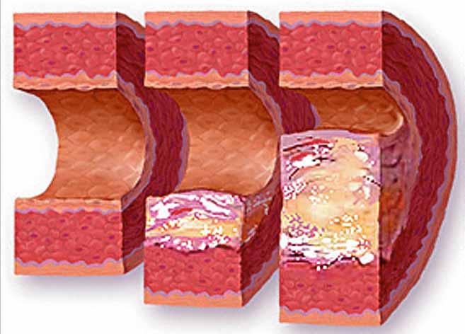 Лечение нестенозирующий атеросклероз бца что