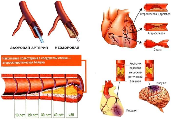 Закупорка сосудов: как почистить кровеносные сосуды народными средствами и как устранить проблему традиционно