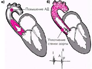 Схема уплотненной аорты
