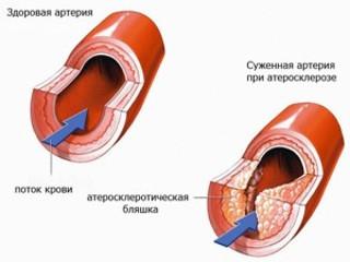 Уплотнение аорты сердца: что это такое, причины и диагностика на рентгене и флюорографии