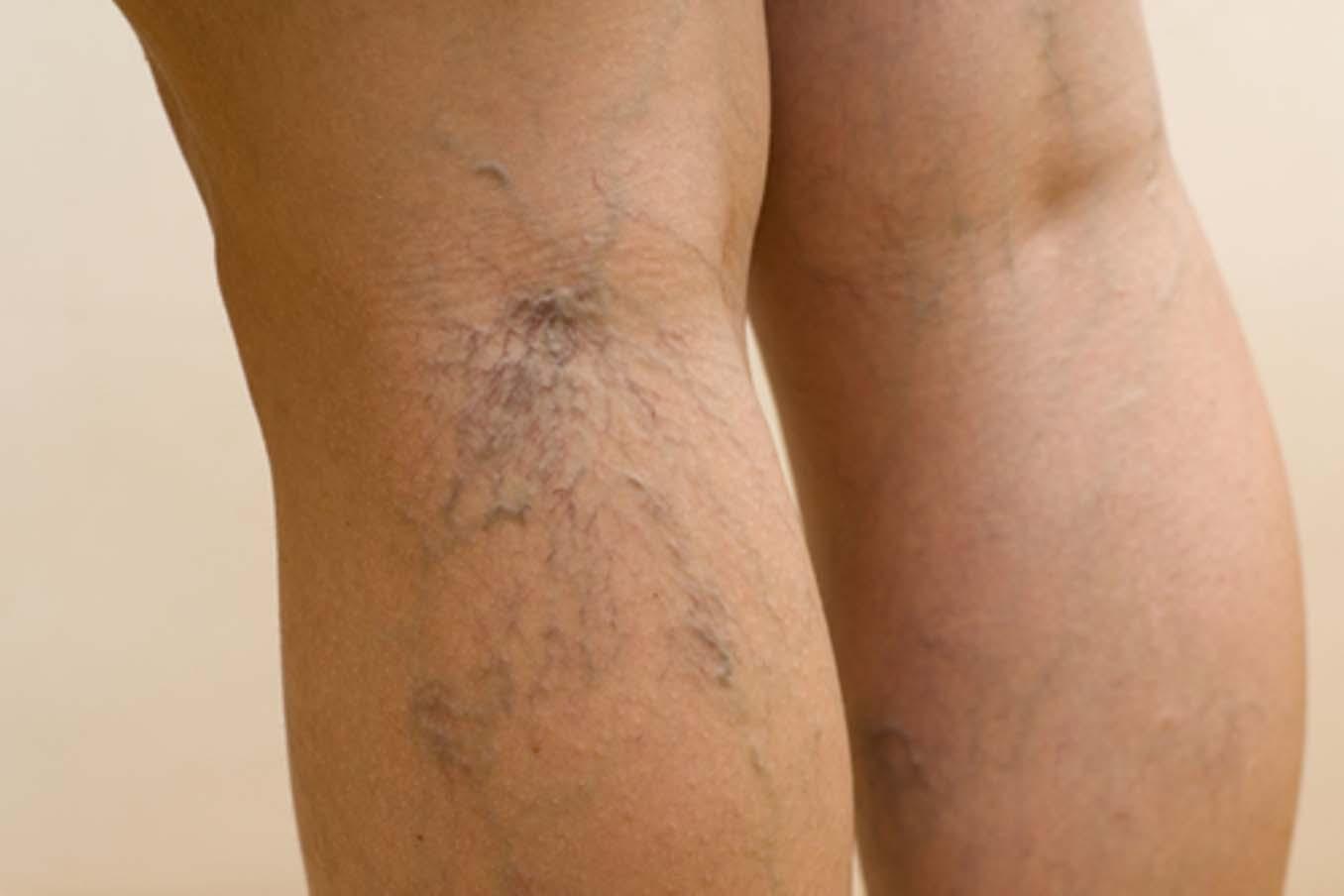 Варикоз при беременности на ногах: причины, способы лечения и профилактики